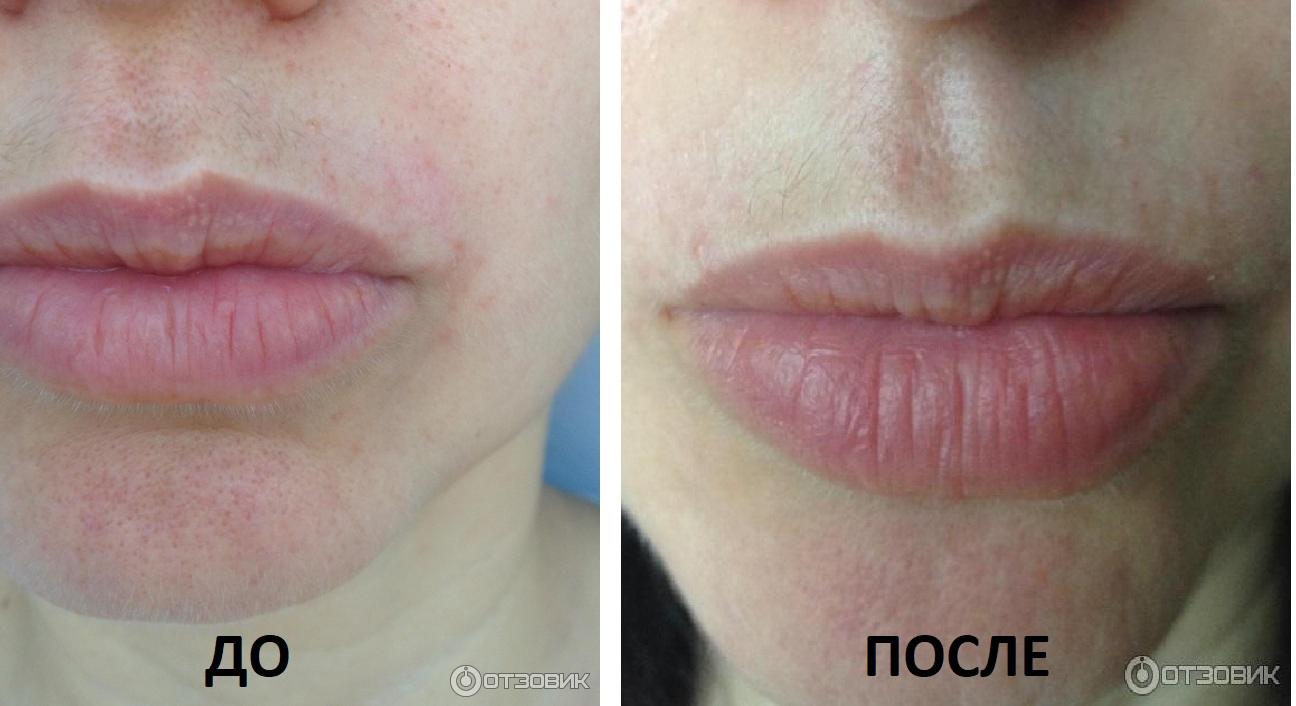 Излишний волосяной покров на лице не повод для беспокойства! разбираем пополочкам: вчем преимущества электроэпиляции лица?