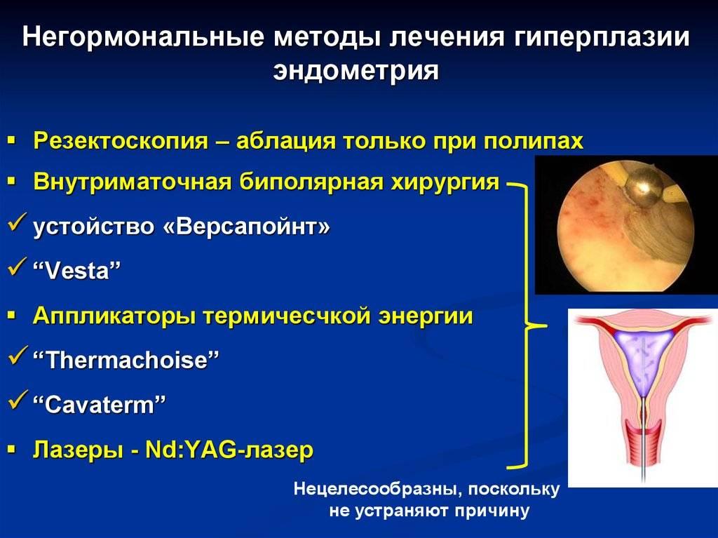 Лечение гипоплазии матки гормональной терапией