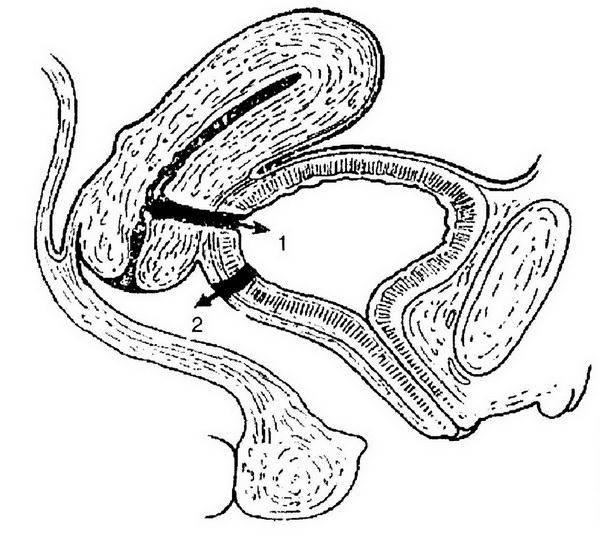 Параректальный свищ - симптомы и лечение