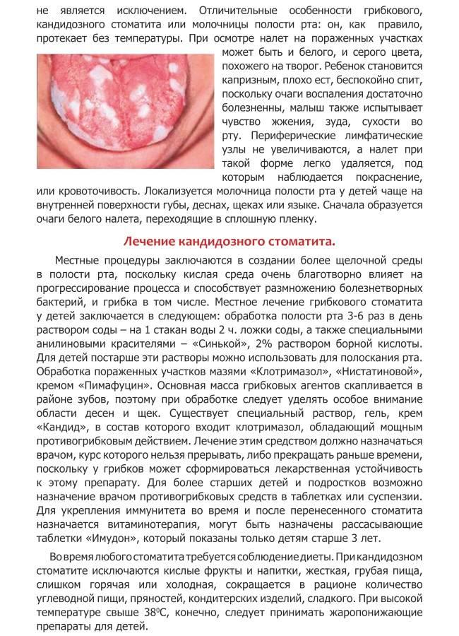 Кандидоз полости рта у детей