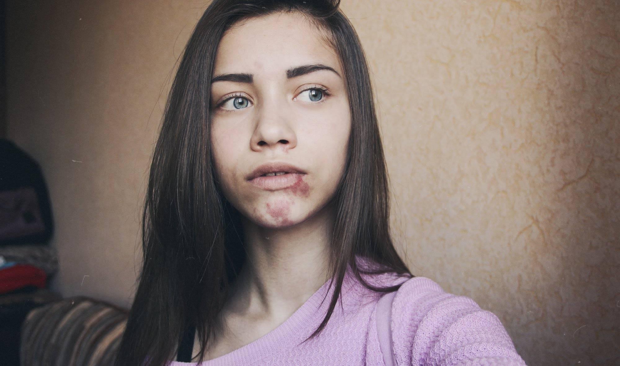 Родинки на лице: можно ли удалять (фото до и после)