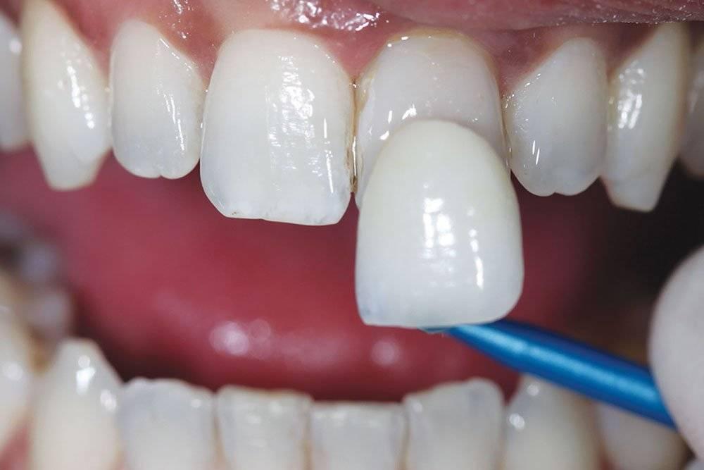 Композитные виниры: фото зубов до и после, особенности изготовления, цены