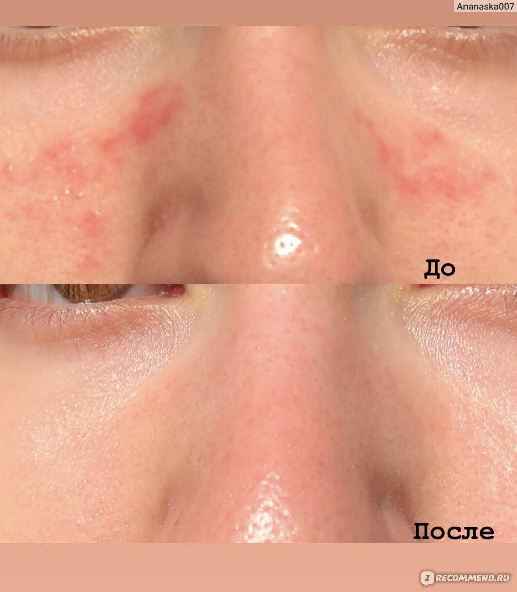 Причины и профилактика себореи кожи головы