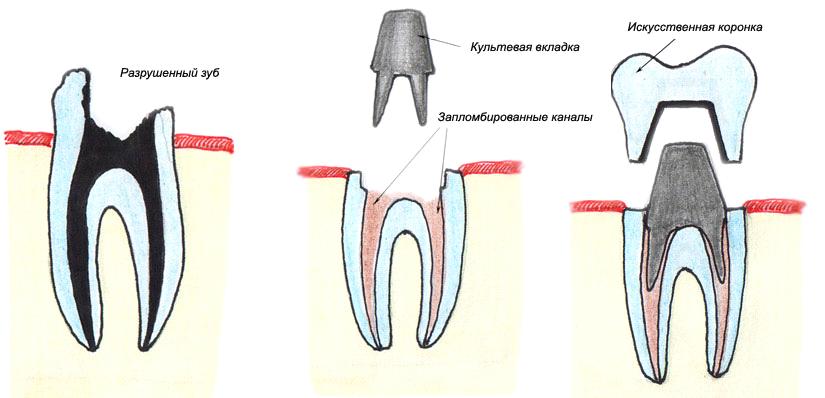 Установка брекетов когда делают слепки зубов