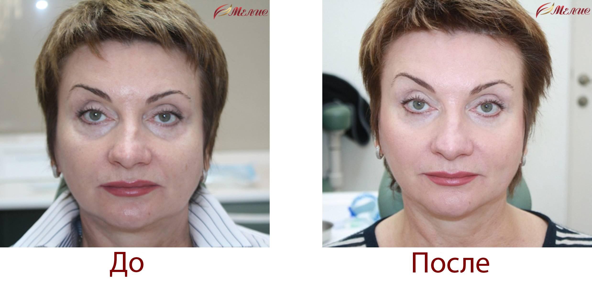 Процедура плазмолифтинг лица: плюсы и возможные последствия