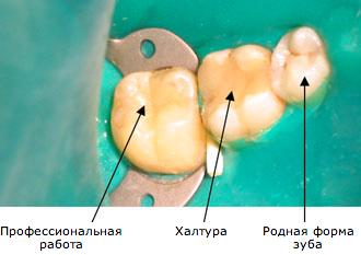 Зуб реагирует на холод после пломбирования — причины