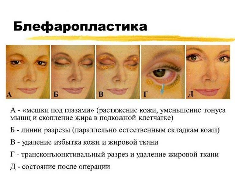 Тёмные круги и синяки под глазами