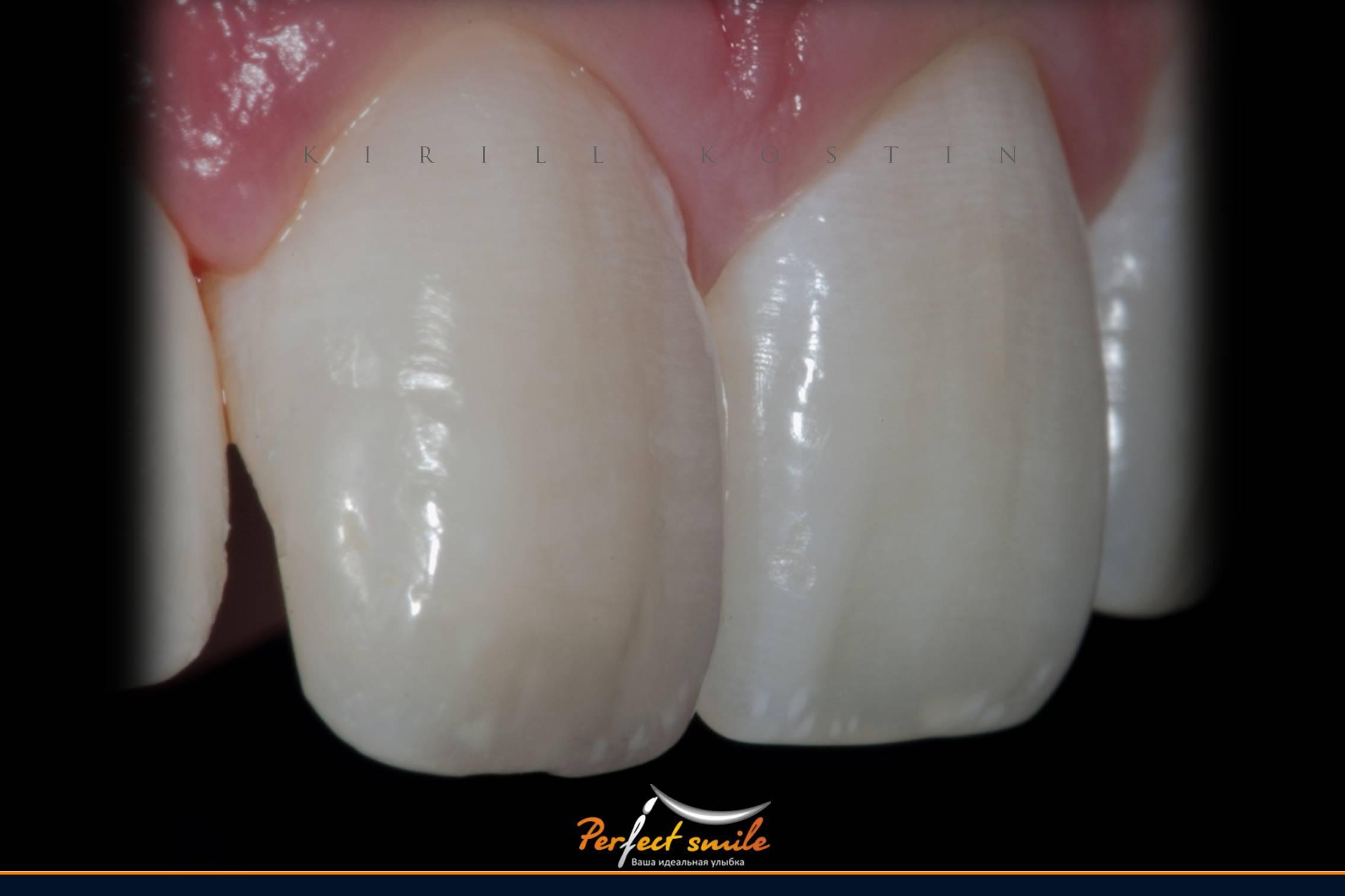 Приметы и суеверия, связанные с зубами. народная примета «зубы что делать с удаленным зубом приметы