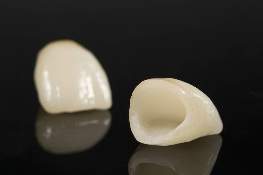 Фарфоровые коронки на передние зубы