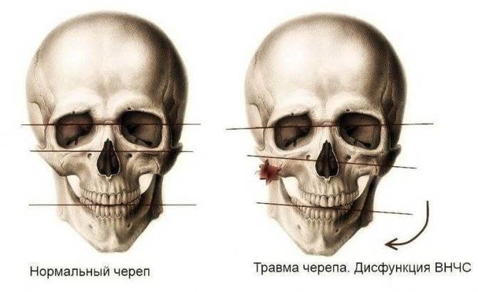 Дисфункция височно-нижнечелюстного сустава (внчс)
