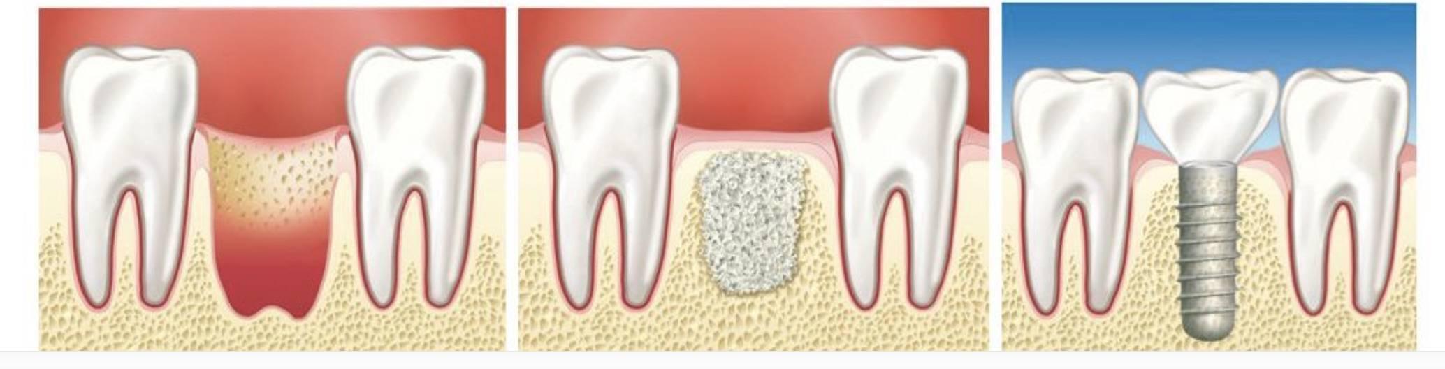 Костная пластика: наращивание костной ткани при имплантации
