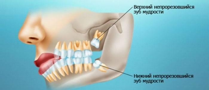 Опухла десна около одного зуба и болит: что делать и как снять опухоль с лица в домашних условиях?