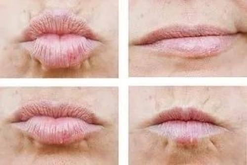 Гимнастика для поднятия уголков губ, если они опущены вниз и от морщин вокруг рта