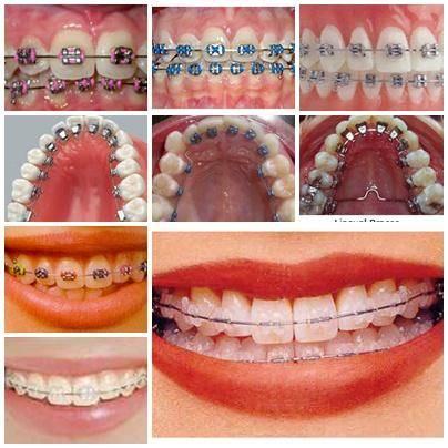 Снятие брекетов в стоматологии