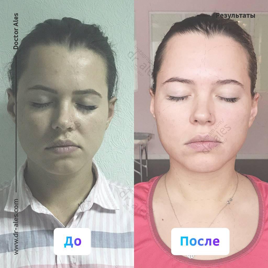 Как исправить асимметрию лица + причины возникновения