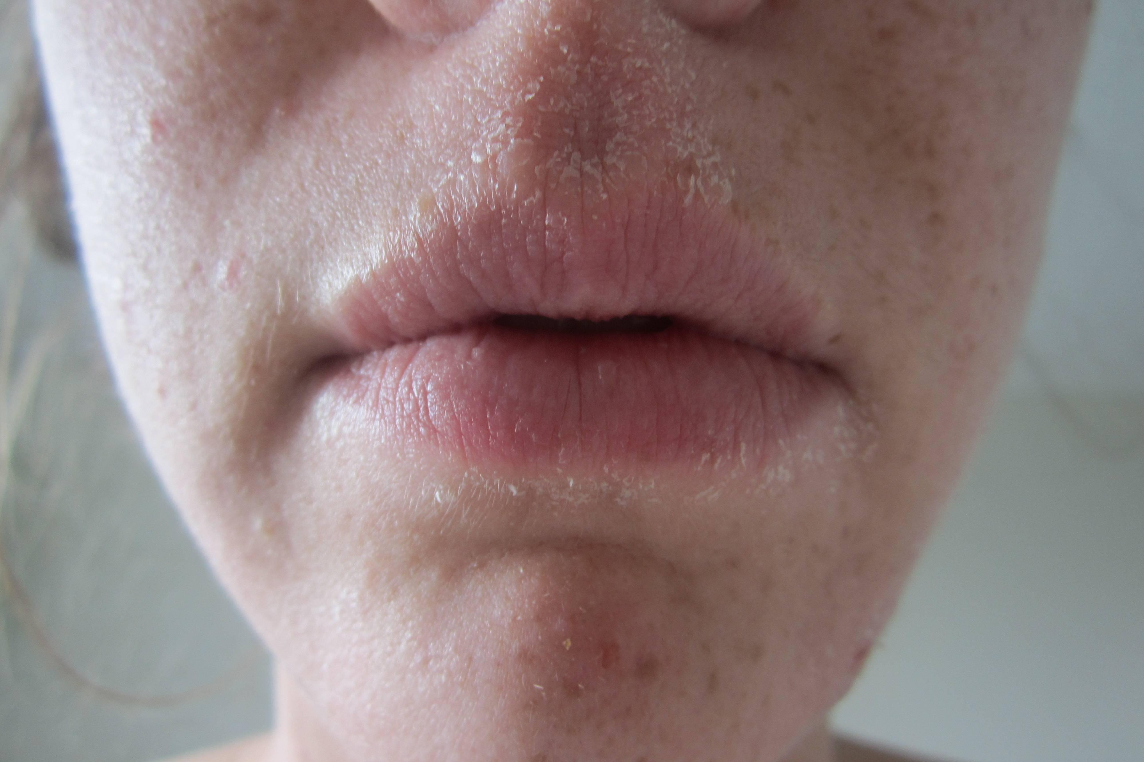 Стягивает губы. почему губы сохнут и как бороться с сухостью