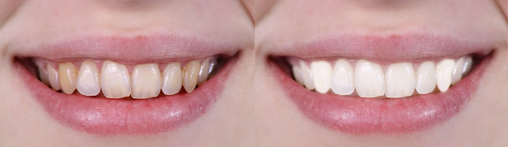 Изменение цвета зубов: почему желтеют зубы