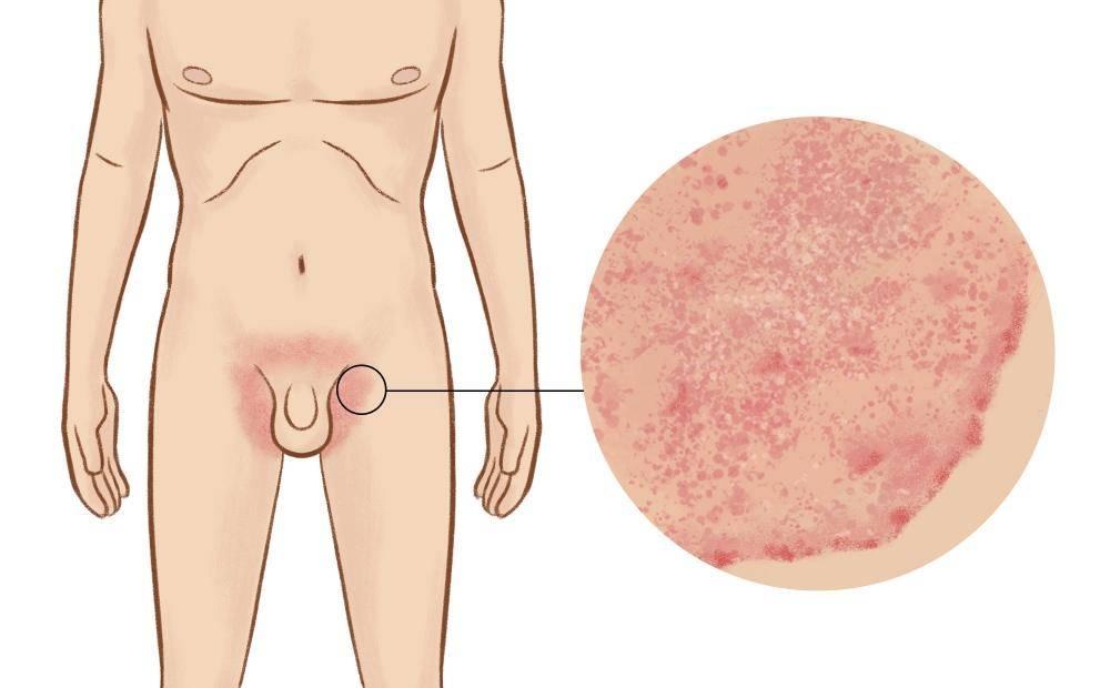 Лечение контагиозного моллюска в интимных местах