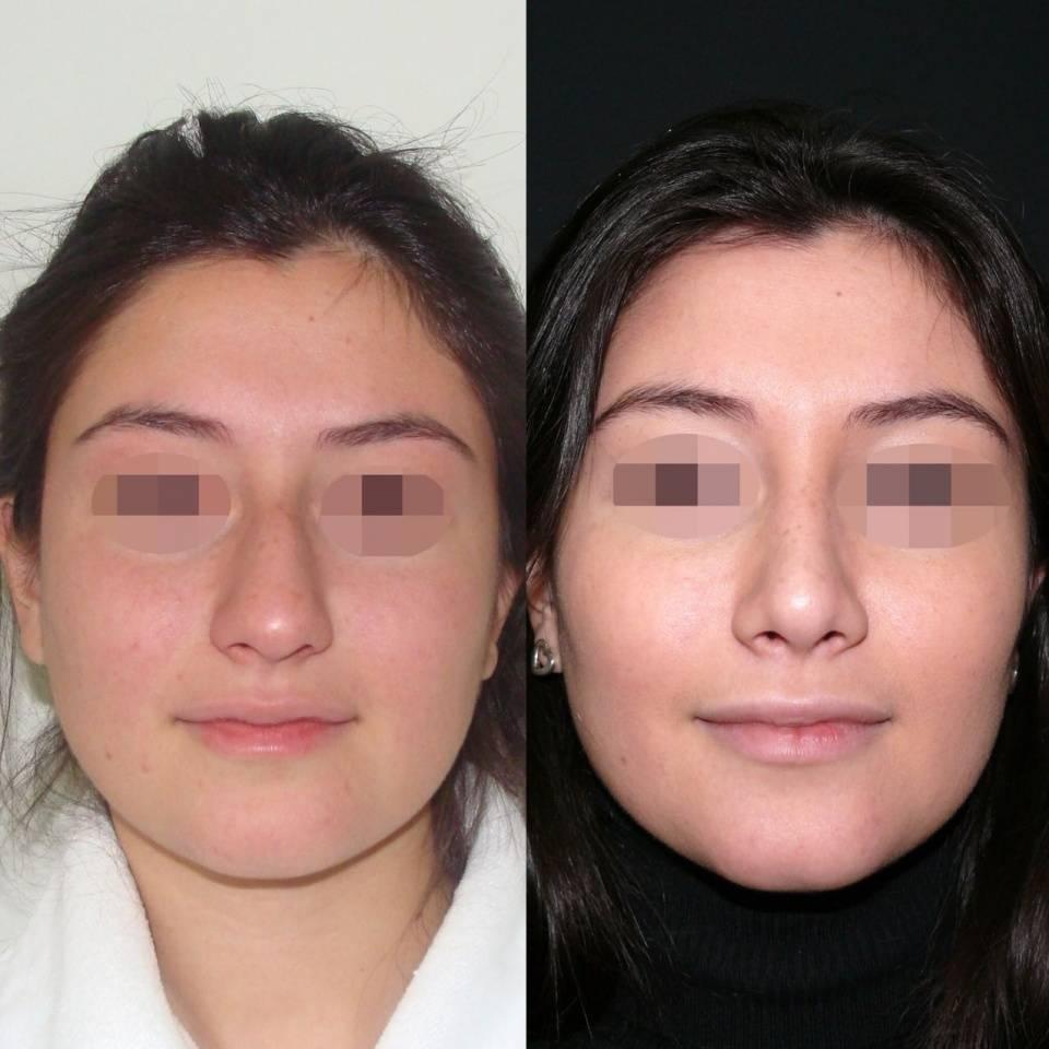 Ринопластика – операция по пластике носа