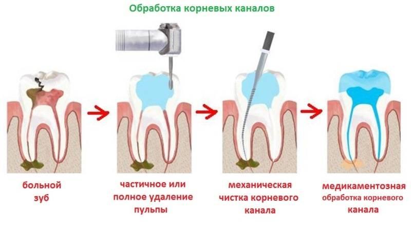Застужен зубной нерв: лечение, причины, профилактика и симптомы застуженного нерва