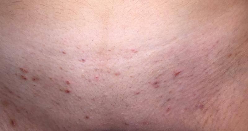 Раздражение после бритья в интимной зоне— почему и что делать