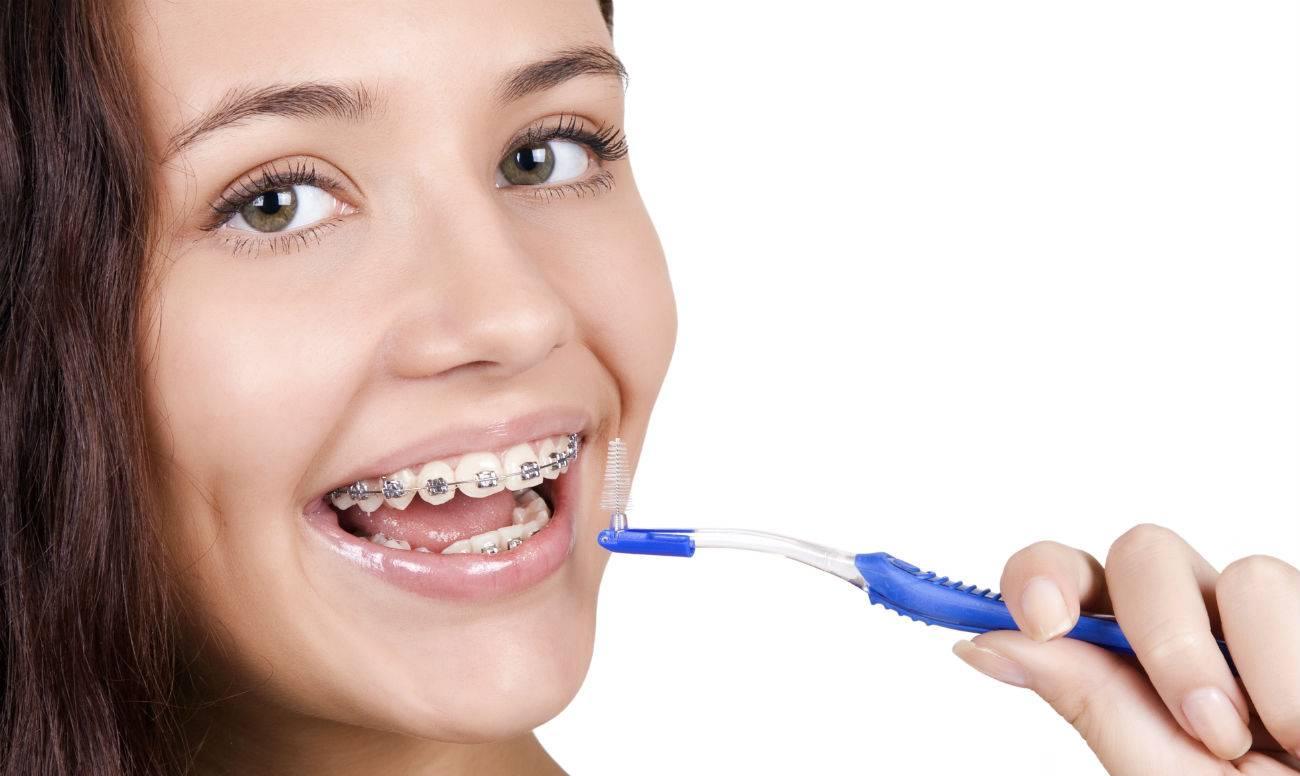 Использование зубной нити и ёршиков при ношении брекетов: видео и советы для правильной чистки зубов