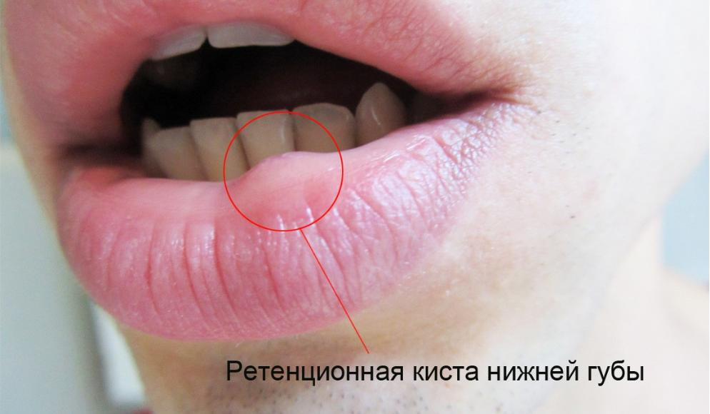 Как вылечить кисту под языком. как избавиться от кисты под языком. симптомы подъязычной кисты и ее диагностика