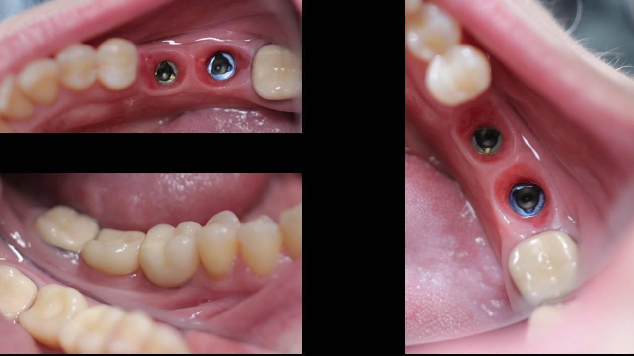 Как «починить» жевательные зубы: какие протезы лучше, можно ли поставить мост или коронку на «восьмерку»?