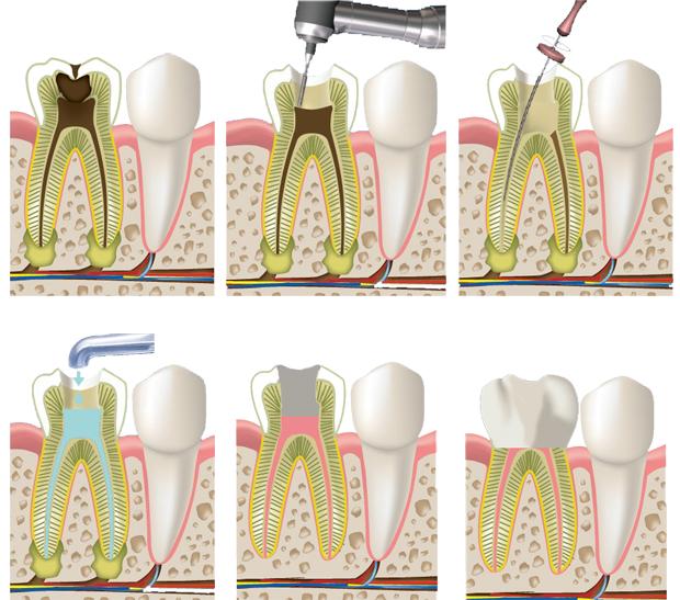 Зуб реагирует на горячее даже после удаления нерва