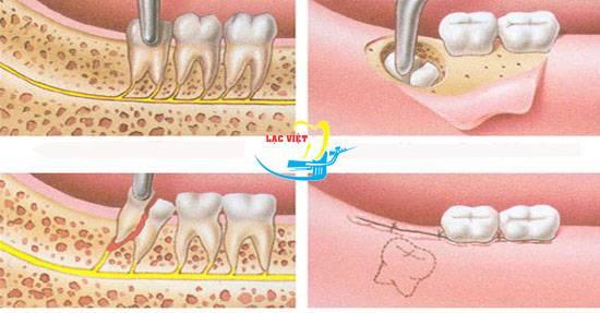 Больно ли снимать швы на десне после удаления зуба мудрости. само рассосется?