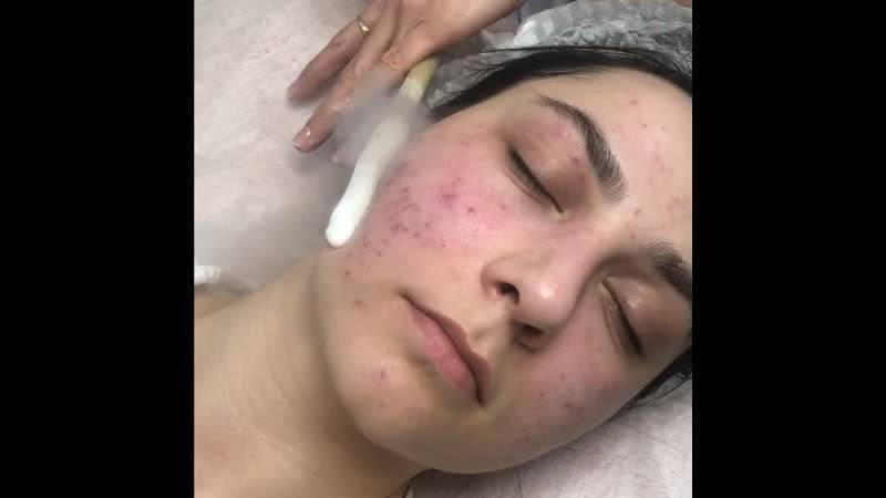 Криомассаж лица жидким азотом: польза и результаты