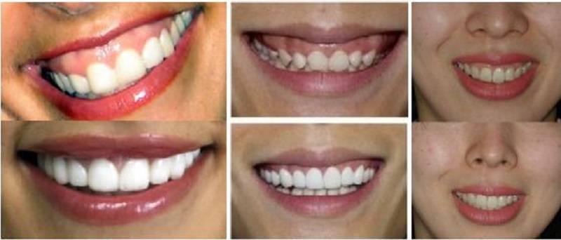 4 способа коррекции десневой улыбки