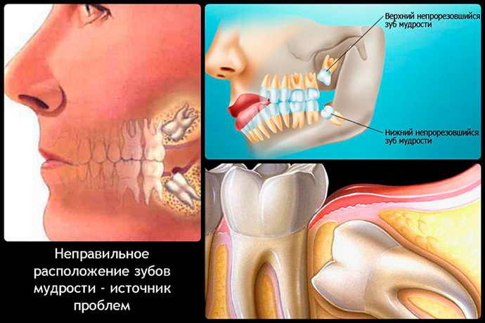 Экзостоз на десне после удаления зуба лечение
