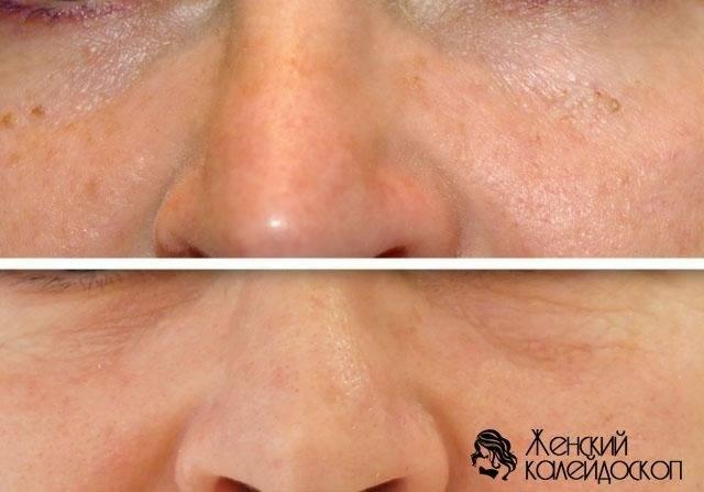 Техника удаления новообразований кожи жидким азотом