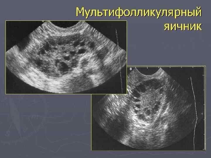 Мультифолликулярные яичники: что это такое, причины, симптомы