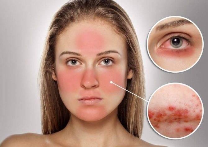 Красные пятна на лице: причина появления и способы лечения