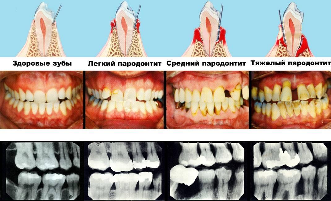 Почему могут неметь челюсть и зубы: причины, методы лечения и устранения онемения