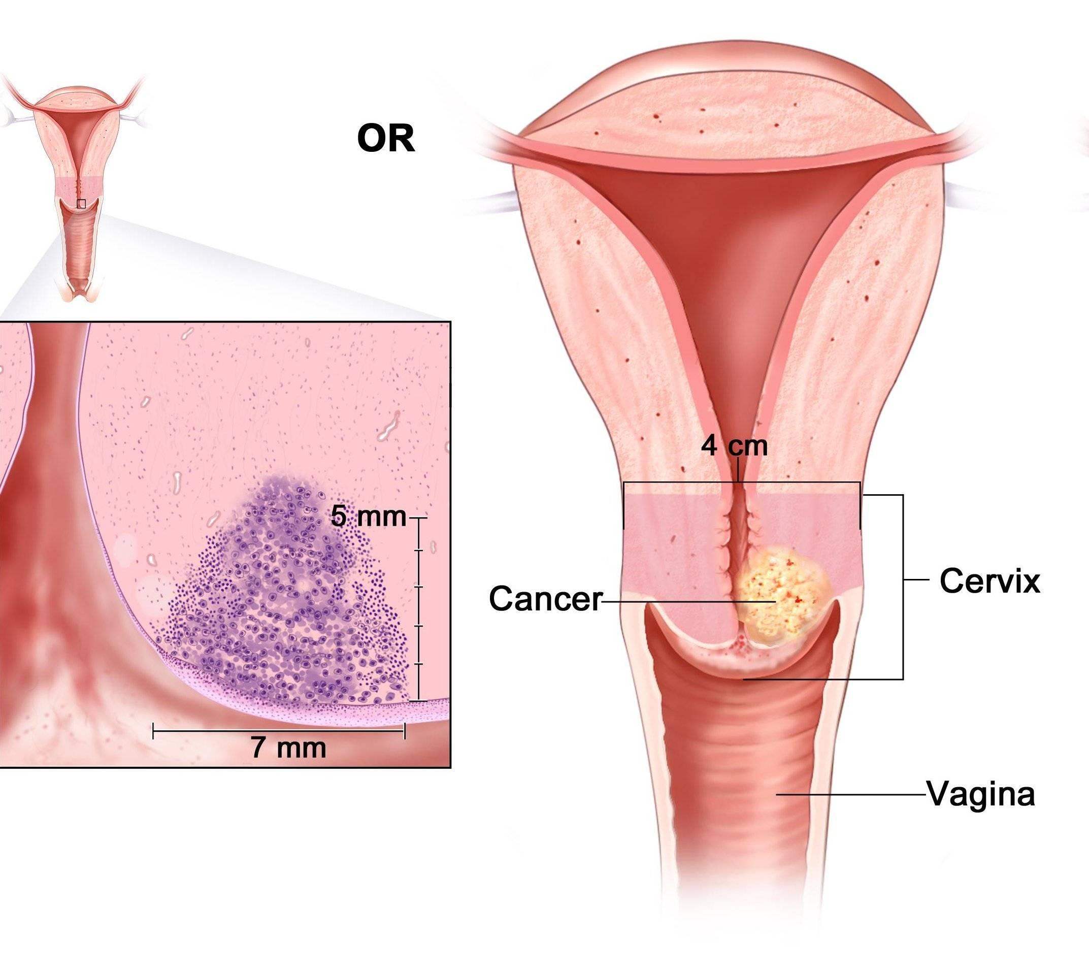 Эрозия шейки матки: что это такое, причины возникновения и последствия, лечение