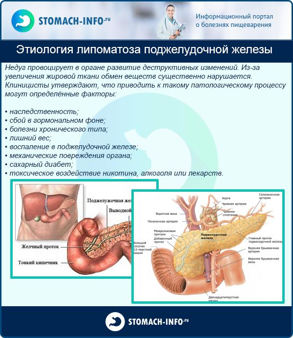 Диффузные изменения поджелудочной железы: диета и лечение