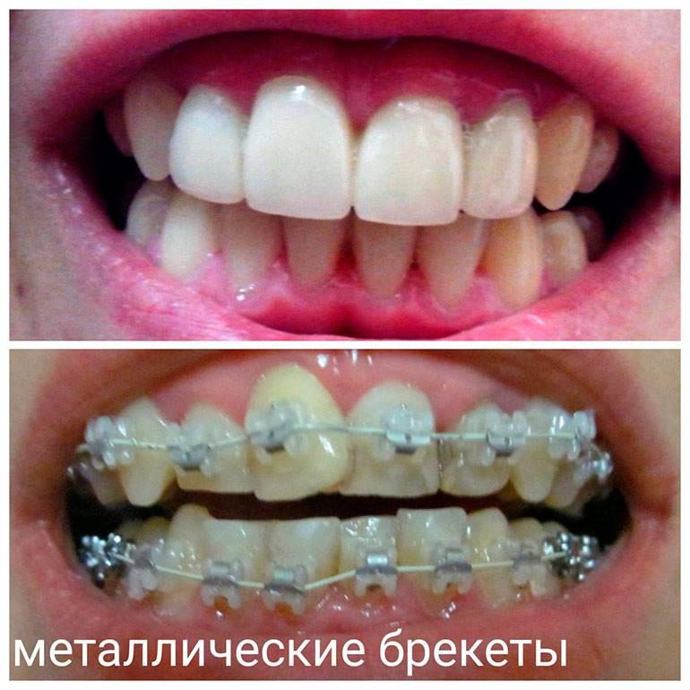 Улыбка до и после ношения брекетов: фото неправильного прикуса и результат лечения