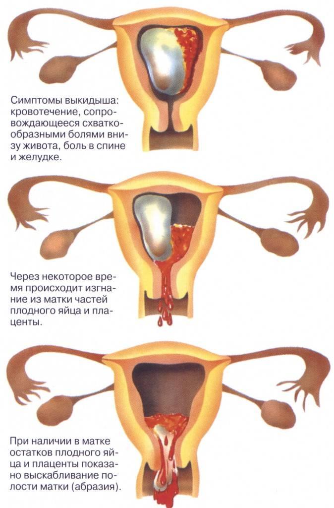 Кровотечение во время беременности