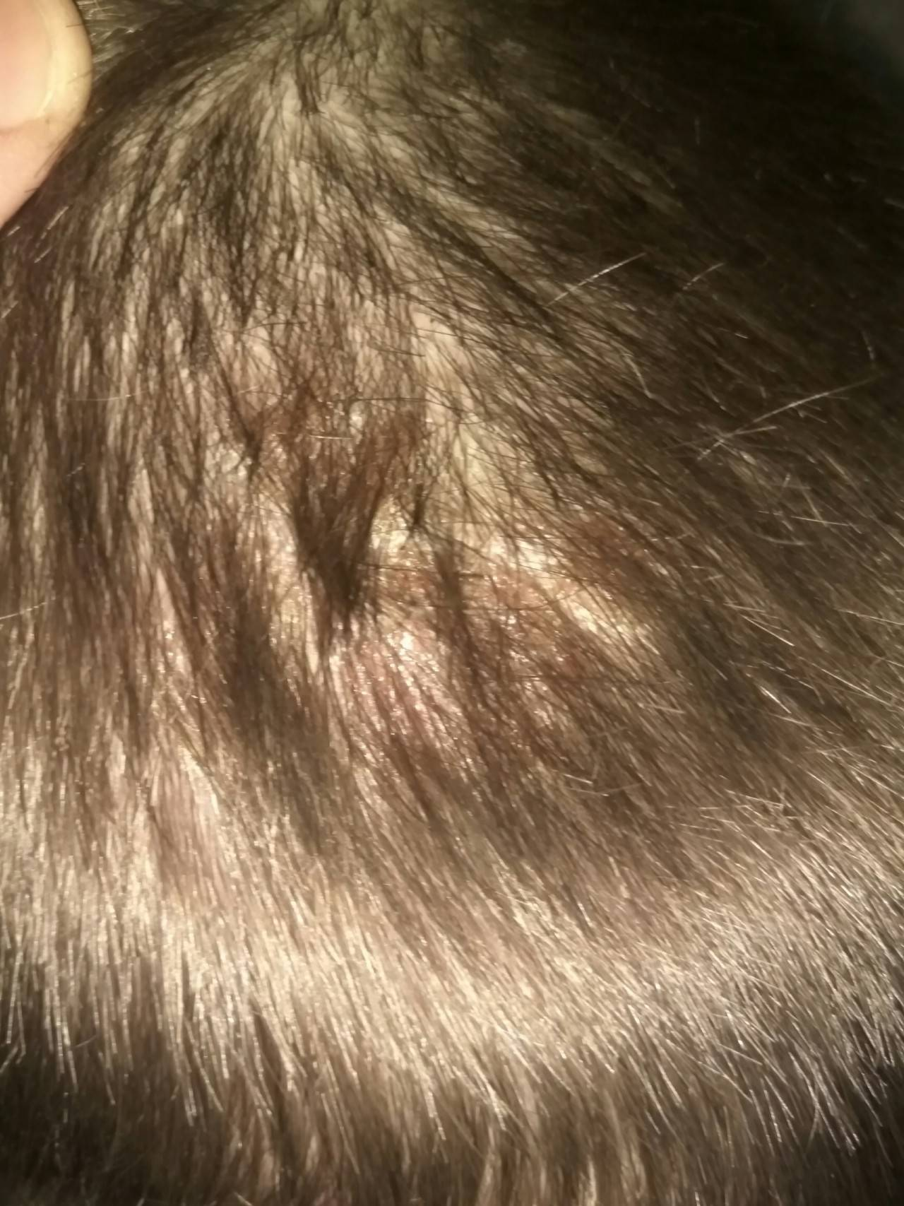 Почему возникают красные и коричневые пятна на голове? распространенные причины