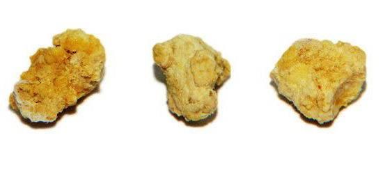 Удаление камня из протока слюнной железы