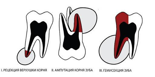 Гемисекция корня зуба: что это за операция и как она проводится?