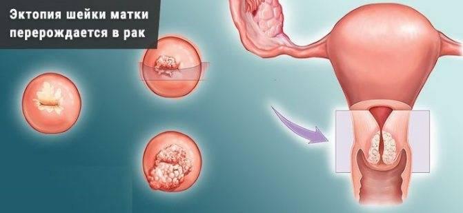 Железистая псевдоэрозия шейки матки