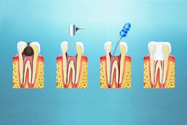 Лечение пульпитов с помощью витальной и девитальной экстирпации