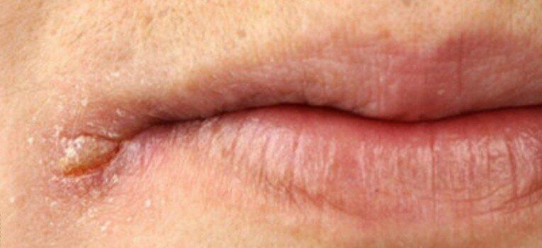 Причины появления и методы лечения заед в уголках рта