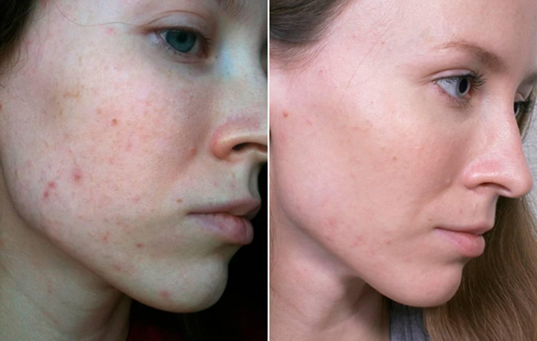 Масло нероли: свойства и применение для кожи лица, отзывы косметологов