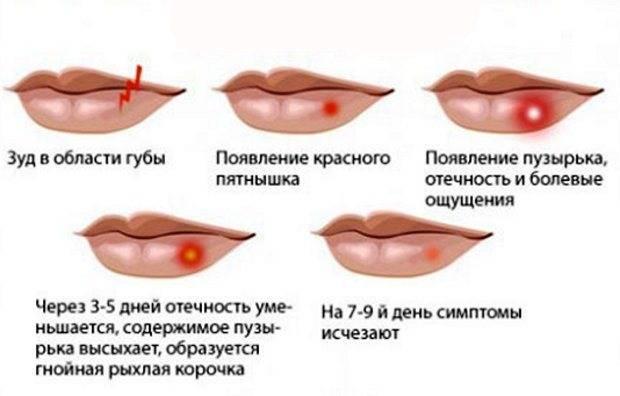 Болячки на губах с внутренней стороны и снаружи: виды, причины, чем и как лечить