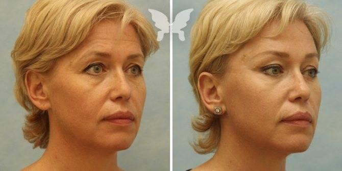 Смас лифтинг лица - новый стандарт хирургического лифтинга